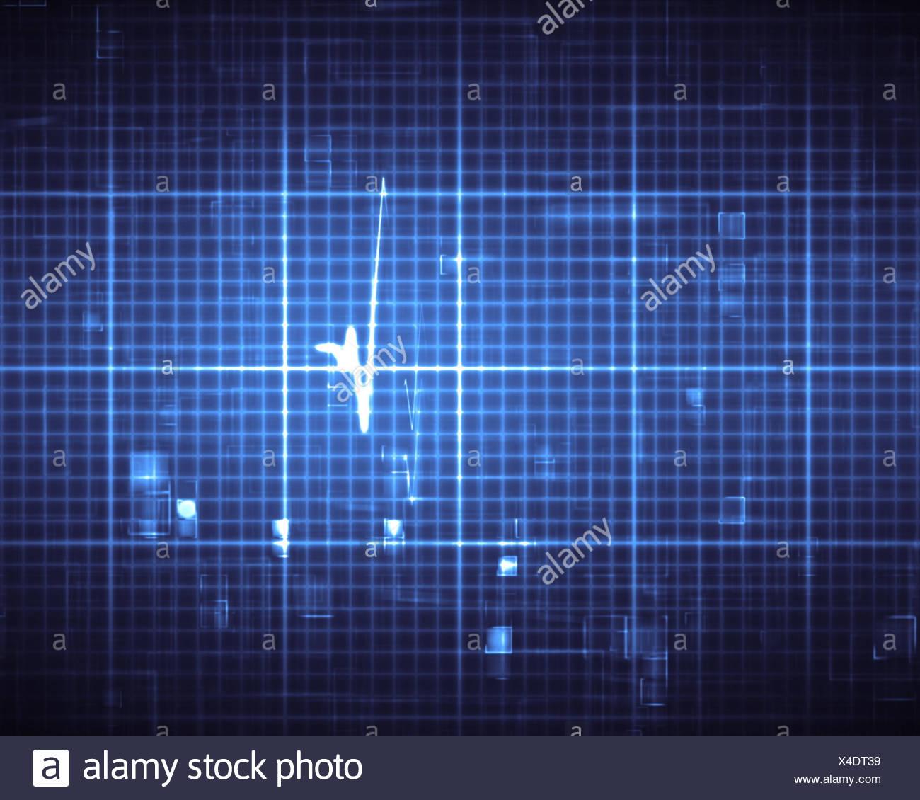 Großzügig Telemetrie Herzmonitor Drähte Fotos - Elektrische ...