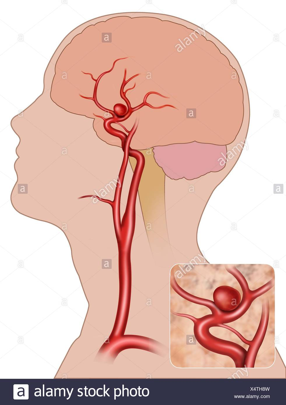 schematic illustration of human head with a saccular aneurysm in ...