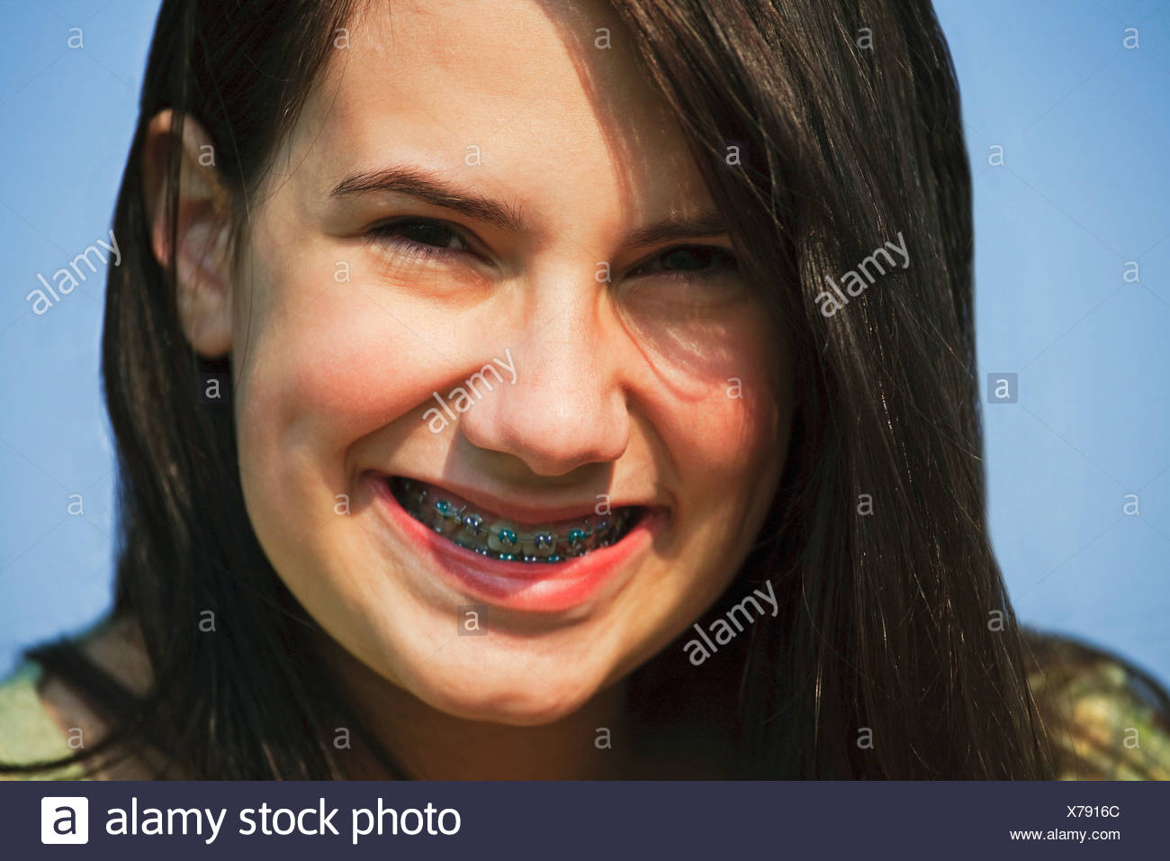 Orthodontic Stock Photos Amp Orthodontic Stock Images Alamy