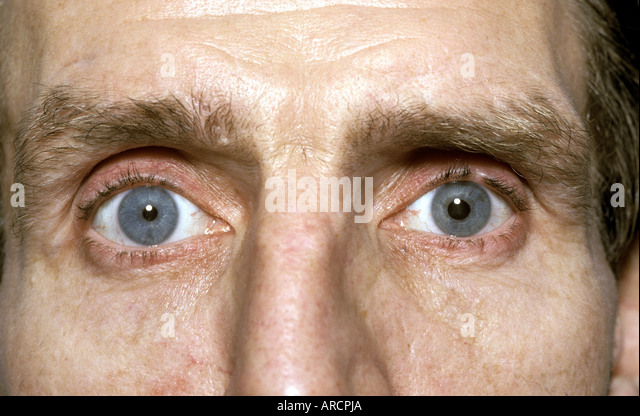 detached retina stock photos & detached retina stock images - alamy, Skeleton