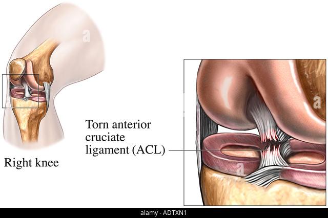 Anterior Cruciate Ligament (A.C.L) Tear