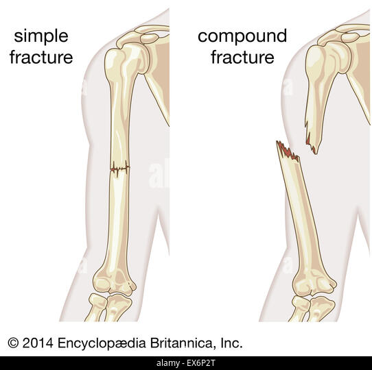 compound fracture stock photos & compound fracture stock images, Human Body