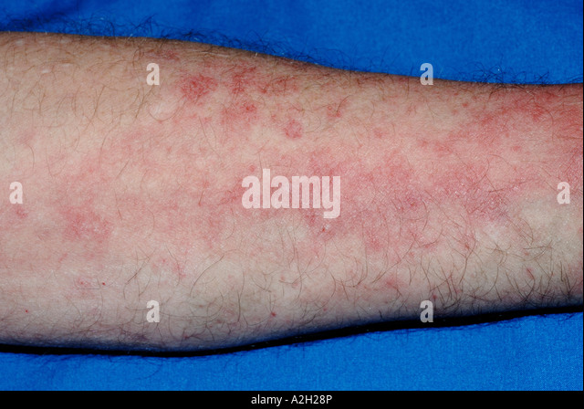 Small, itchy bumps on forearm (rash?) - Dermatology - MedHelp