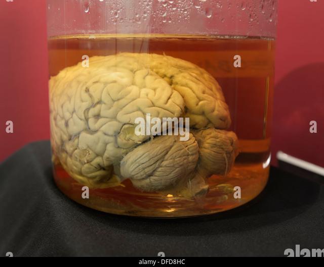 Formaldehyde Brain Formaldehyde Jar Stock...