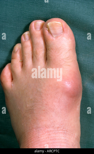 treatment for gout medications foods to avoid high uric acid levels test your uric acid level home