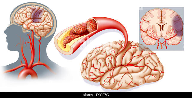 cerebral vascular accident stock photos & cerebral vascular, Skeleton