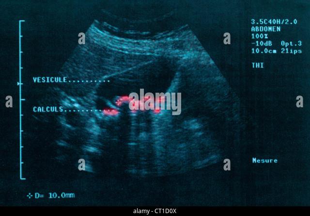 Gallstone ultrasound