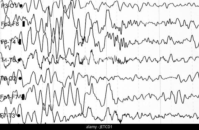 electroencephalography stock photos