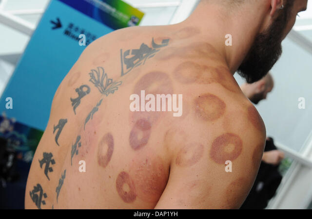 Cupping Marks Stock Photos Amp Cupping Marks Stock Images
