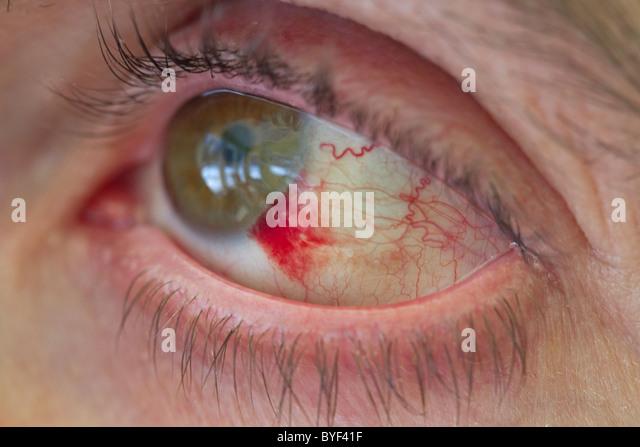 subconjunctival hemorrhage stock photos & subconjunctival, Skeleton