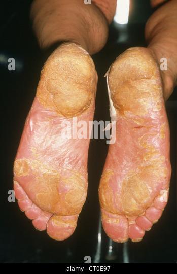 elephant skin disease #11