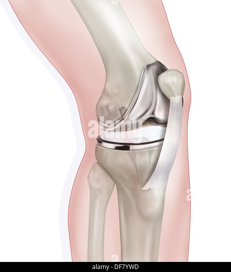 artificial knee prothesis replacement