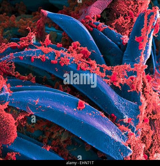 plague bacillus yersinia pestis essay A bivalent anthrax-plague vaccine that can protect against two tier-1 bioterror pathogens, bacillus anthracis and yersinia pestis.