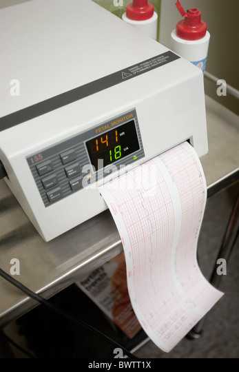 Contractions Monitor Stock Photos Amp Contractions Monitor