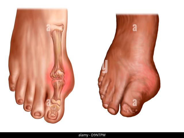 Anatomy Swollen Foot Stock Photos & Anatomy Swollen Foot ...