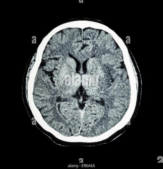brain cat scan-#21