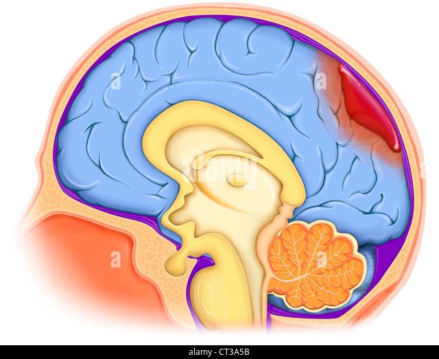 Uterus Tear During C Section Rupture Uterus Post Cesarean