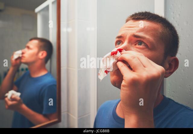 Broken nose man stock photos broken nose man stock images alamy for Bleeding when going to the bathroom