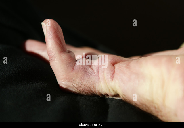 Post Operative Stock Photos Amp Post Operative Stock Images