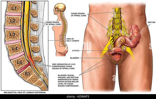 ... -S1 Lumbar Disc Herniation with Surgical Discectomy and Decompression