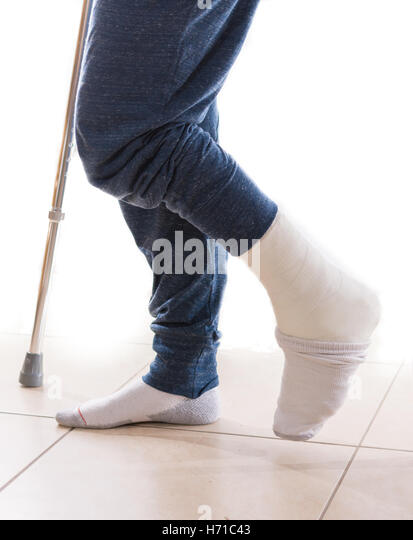 how to keep toes warm in a cast