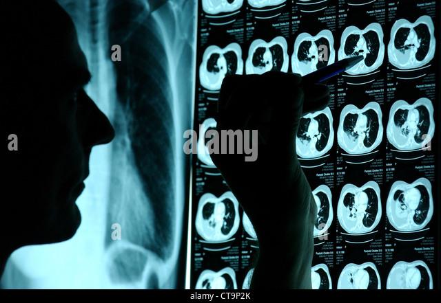 ct röntgen