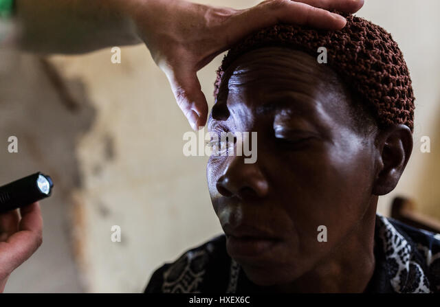 Hepatitis B Patient Eyes Hepatitis A Stock Phot...