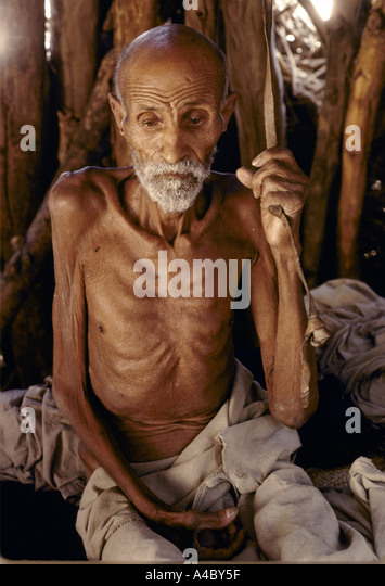 malnutrion in the elderly Malnutrition case study malnutrition case study malnutrition malnutrition is defined as a term which refers to the problem arises from the imbalance or improper diet.