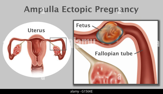 Ectopic Pregnancy Stock Photos & Ectopic Pregnancy Stock ...