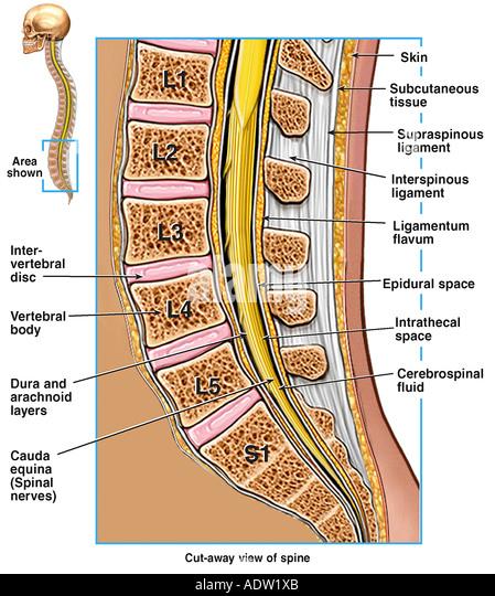 Celebrity microdiscectomy back