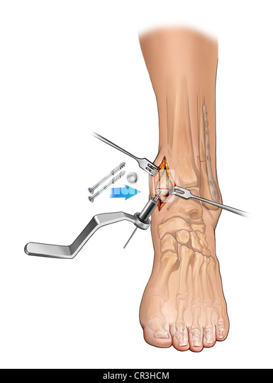 medial malleolus stock photos medial malleolus stock images alamy