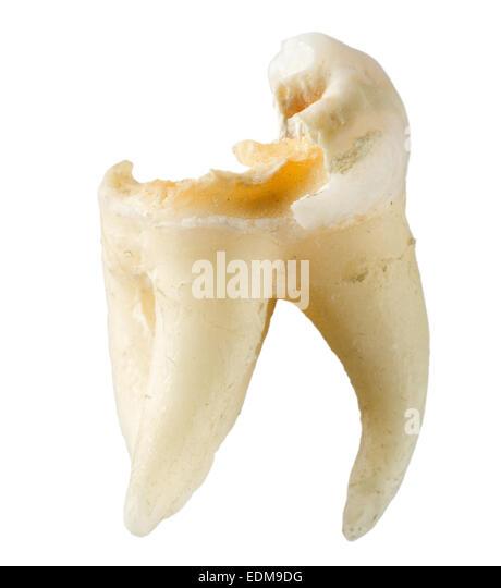 essay on wisdom teeth The wisdom in losing your wisdom teeth is cataloged in healing, health, health & wellness, heartbreak, wisdom teeth  click here to reach the essay .