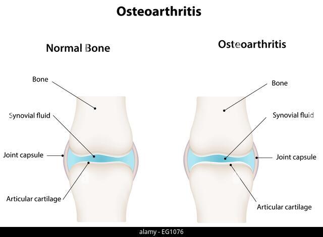 knee cyst diagram