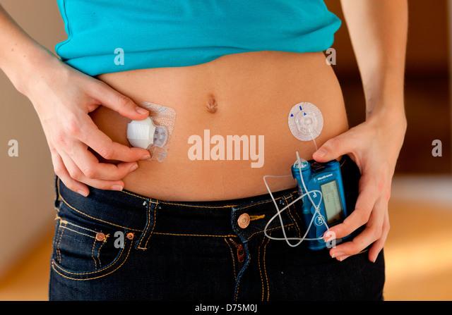 Programmable Insulin Pump Administering Insulin Stock Photos ...