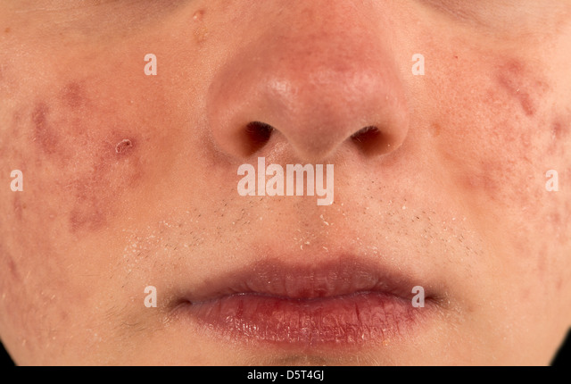how to clear redness from acne