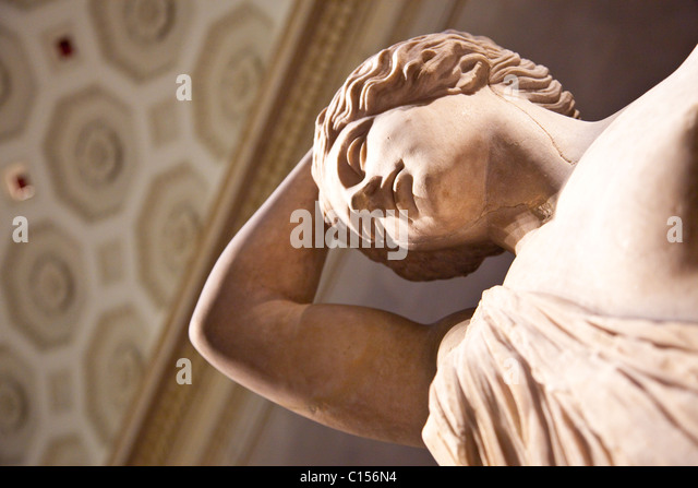 marble statue of a wounded amazon Sosicles (ancient greek: ) was a roman sculptor in the mid 2nd century ad he worked as copyist of ancient greek masterpieces he is known from his signature shown on a marble plinth from tusculum and the column of a marble statue of a wounded amazon (originally in the.