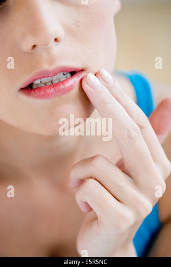 dating a girl with cold sores Would you date someone whose had cold sores (oral herpes) dating dating, courting, or as we have both said cold sores are so common we hear the word cold.