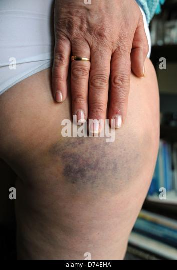Bruised Leg Stock Photos  U0026 Bruised Leg Stock Images