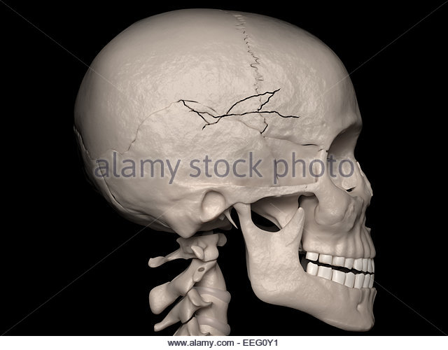 Comminuted Fracture Stock Photos & Comminuted Fracture ...