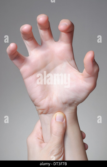 Broken Wrist Stock Photos Amp Broken Wrist Stock Images Alamy
