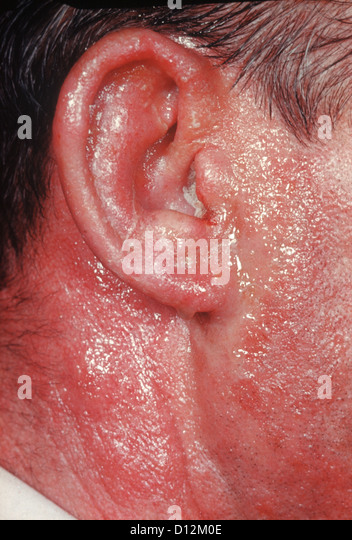 otitis externa stock photos & otitis externa stock images - alamy, Skeleton