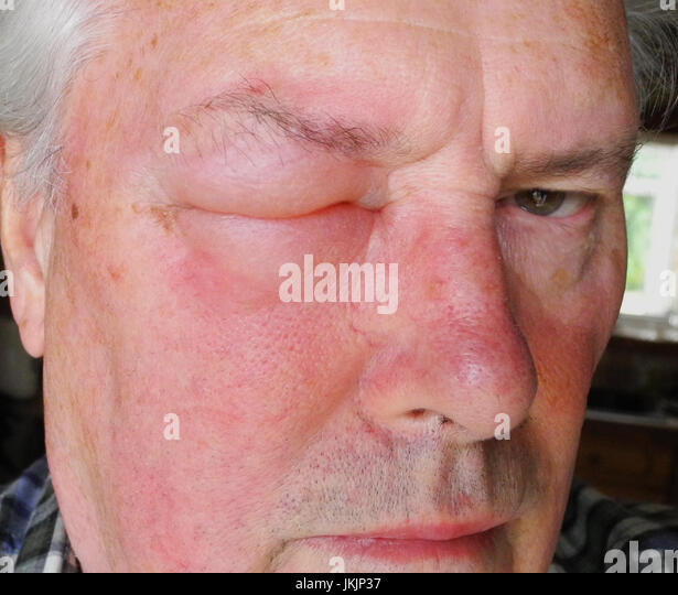 Allergic Reaction Stock Photos & Allergic Reaction Stock ...