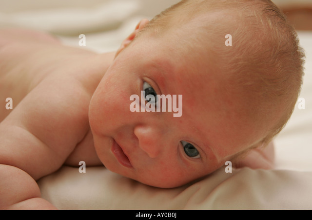 Nappy Rash Stock Photos Amp Nappy Rash Stock Images Alamy