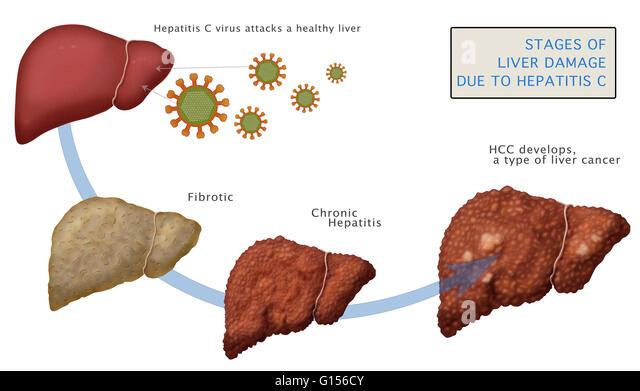 Hepatitis A Stock Photos Amp Hepatitis A Stock Images Alamy