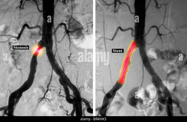 Artery Blockage...