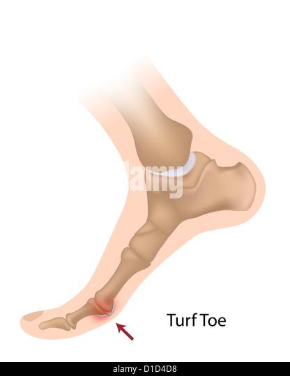 how to fix turf toe