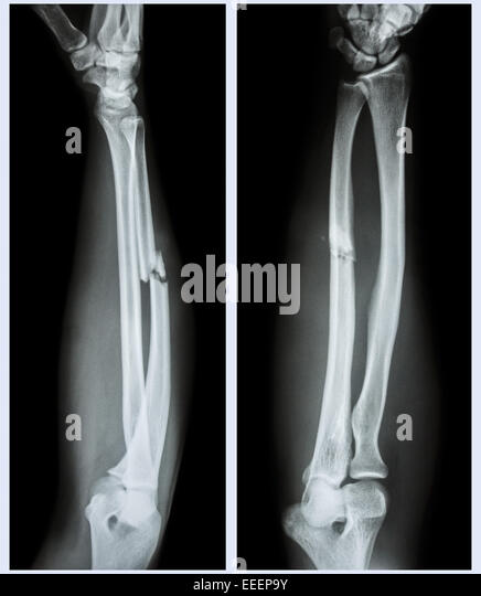 comminuted fracture stock photos & comminuted fracture stock, Human body
