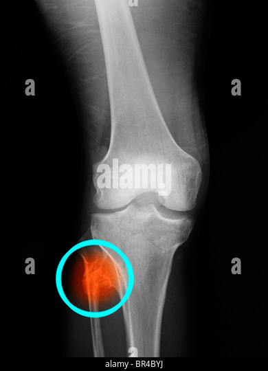 Bone Fracture Healing Stock Photos & Bone Fracture Healing ...
