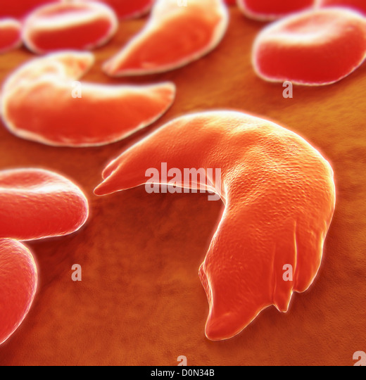 an introduction to the sickle cell disease an inherited blood disorder Policy interpretation ruling for evaluating cases involving sickle cell disease (scd)  scd is the most common inherited blood disease in the  in this ssr, we.