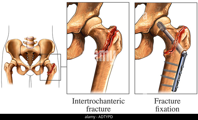... Hip Fracture with Fixation Device fracture - Stock Image